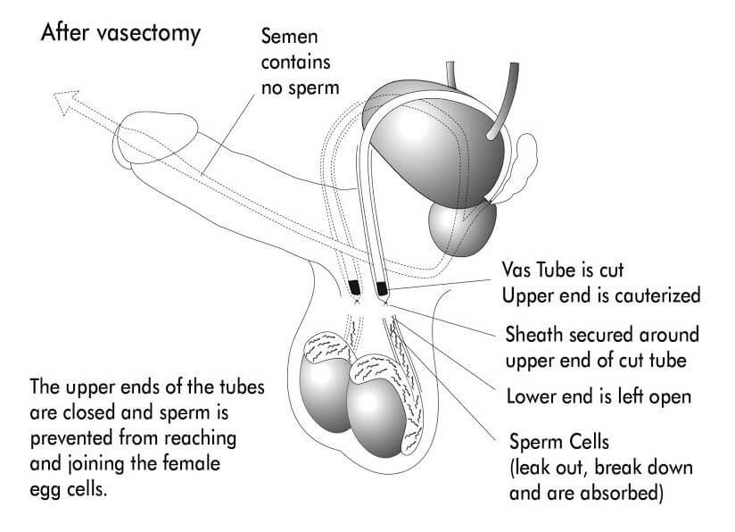 Cost to extract sperm after vasectomy